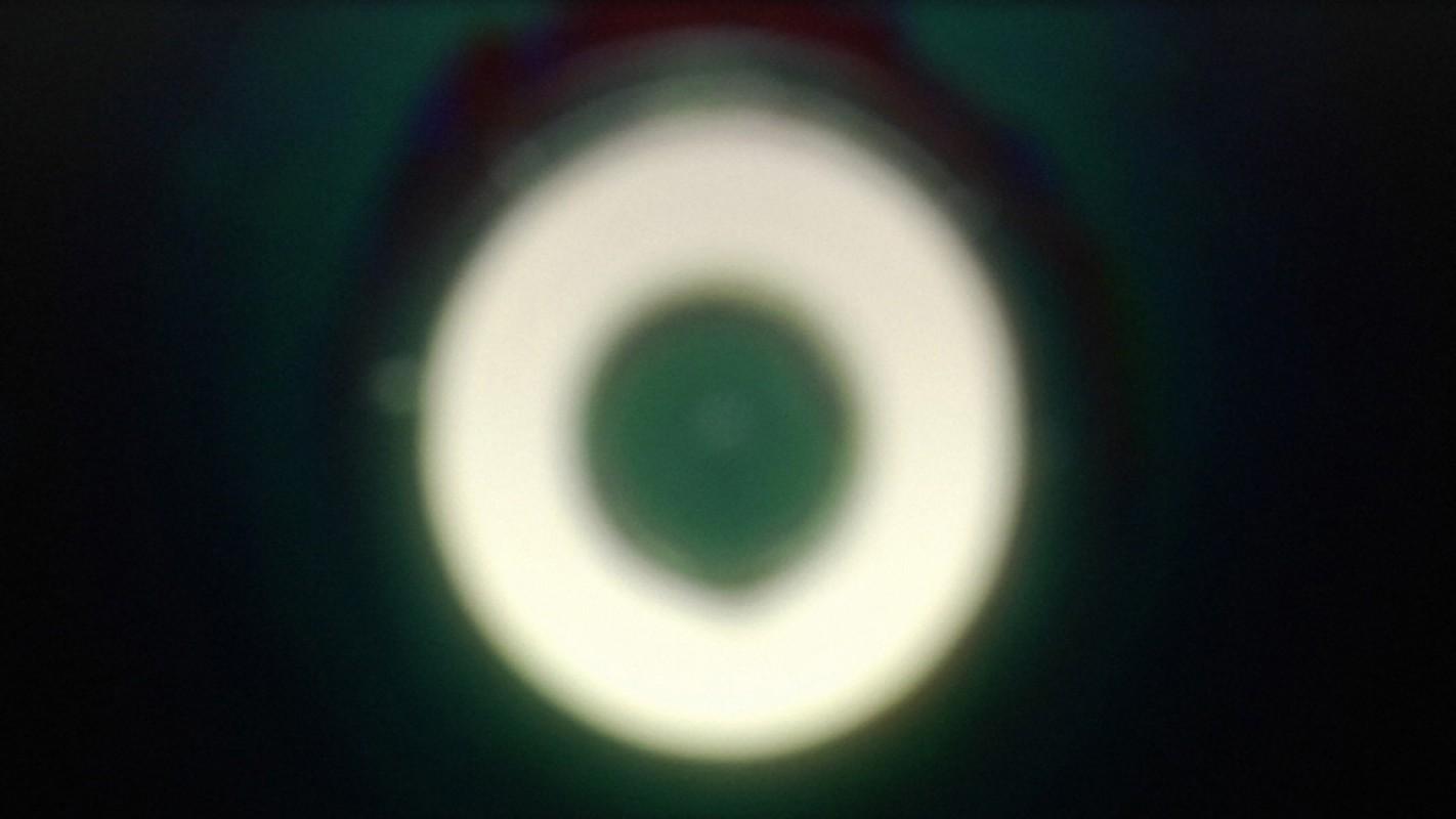 1415279524 girardet mueller eye 2