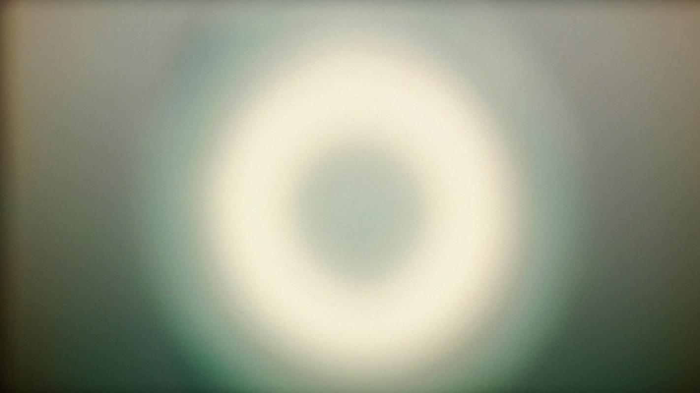 1415279535 girardet mueller eye 3